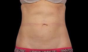 f-01-abdomen-after